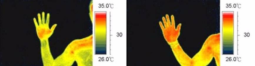 Энергетический магнитный браслет с ДИЛ