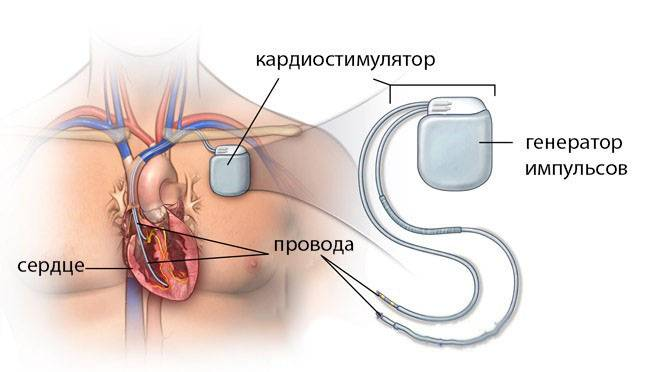 кардиостимулятор сердца характеристика