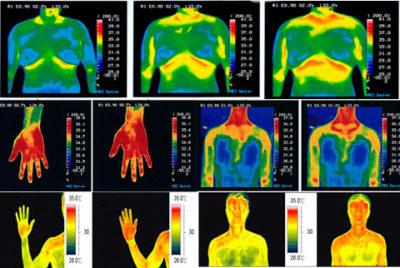 Тест теплового изображения